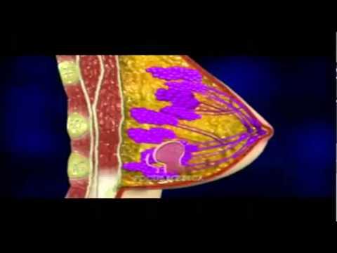 Turmeric Curcumin   Cancer Cure and More! EndAllDisease com   YouTube