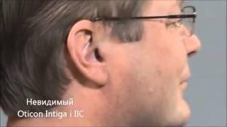 Как вставить в ухо и как извлечь слуховой аппарат Otiocn Intiga i(, 2015-03-31T09:21:16.000Z)
