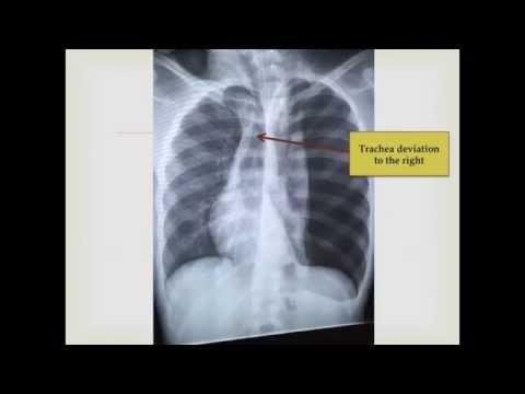 Spontaneous Tension Pneumothorax (CXR),...
