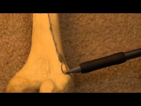 Anatomy and Osteology of the Femur
