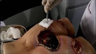 Ulkus Dekubitus merupakan salah satu contoh trauma fisik yaitu iritasi pada jaringan lunak rongga mu.