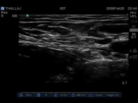 ultrasound guided femoral nerve block - youtube, Muscles
