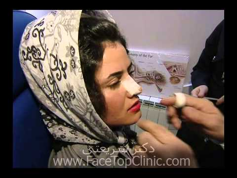 Rhinoplasty Iran - Real story of nose surgery in Iran  +98 9