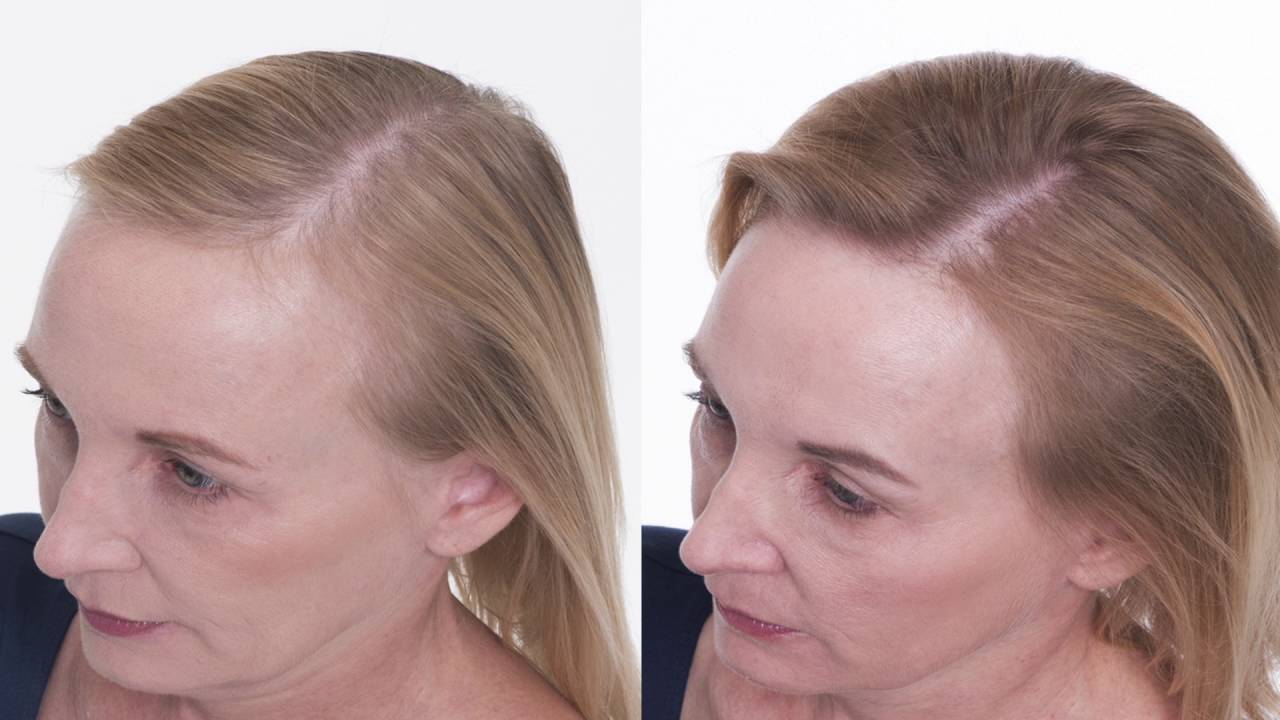 The Truth About Women's Hair Loss: Kasli's Story ...