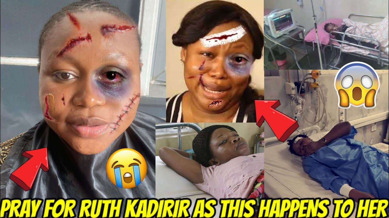 Download PRAY FOR ACTRESS RUTH KADIRI AS THIS HAPPENS TO HER IN HOSPITAL BED😭😭SO SAD😥