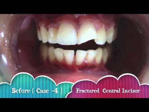 Cosmetic dentistry in nagpur resin teeth bonding before after cosmetic dentistry in nagpur resin teeth bonding before after solutioingenieria Gallery