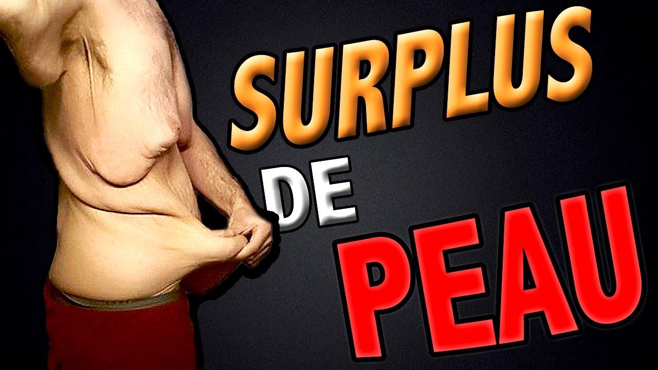L'EXCÈS DE PEAU APRÈS UNE PERTE DE POIDS !! - YouTube