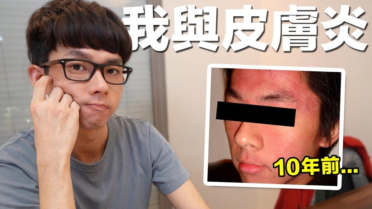 阿滴英文|令人心碎的分享... 阿滴的異位性皮膚炎故事 (中英雙字幕) - YouTube