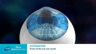 What is astigmatism? - Rose Optometrists explain