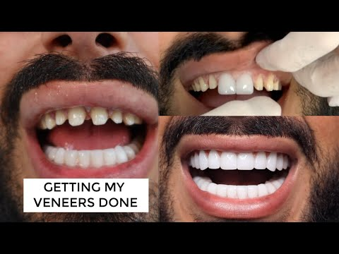 ME GETTING MY VENEERS CHANGED - IS IT WORTH IT? (Dental Centre Turkey)