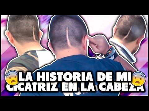 LA HISTORIA DE LA CICATRIZ DE MI CABEZA