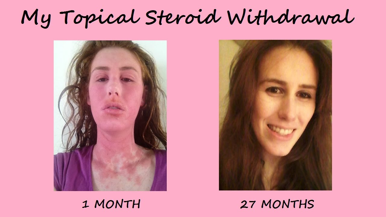 steroid withdrawal symptoms rheumatoid arthritis