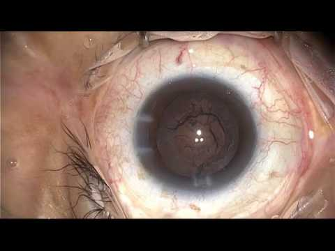 Kevin Waltz performs a subincision cortex case in Central American Eye Clinics