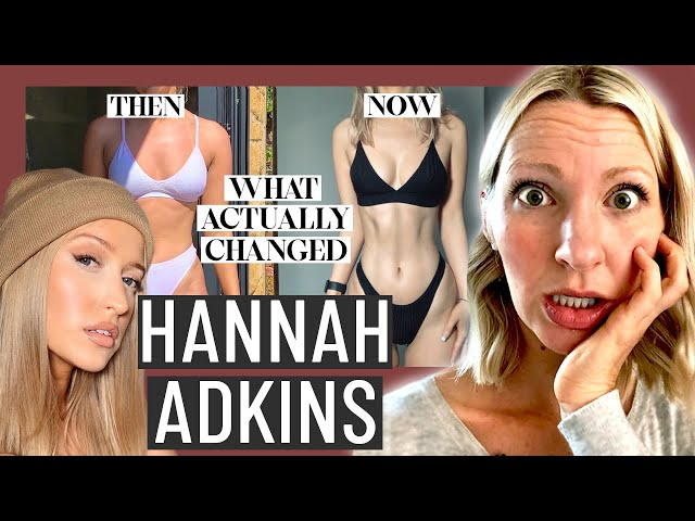 Dietitian Reviews Hannah Adkin's Tips for Losing Fat (Yikes... be careful what