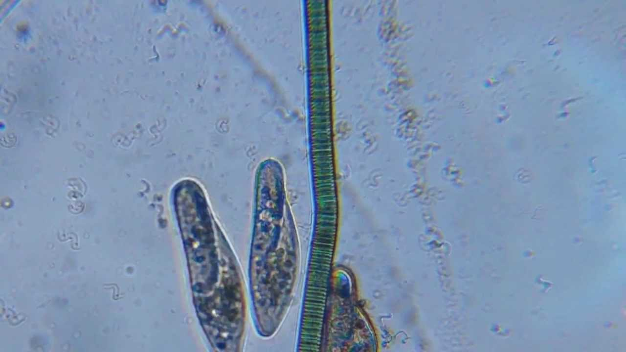 Paramecium and Oscillatoria among Spirillum - YouTube
