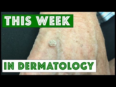 Dermatology This Week: Various dermatologic procedures