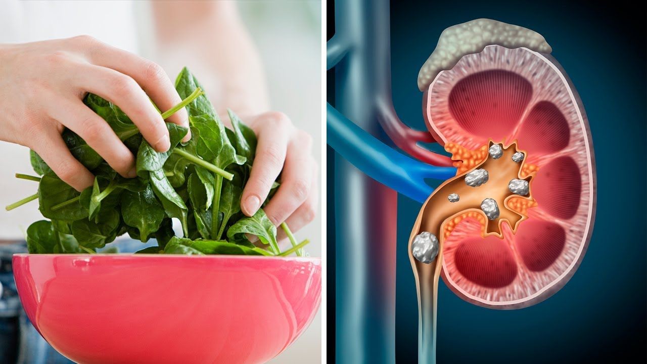 You've Been Eating Spinach Wrong... And This Could Harm Your Kidneys!