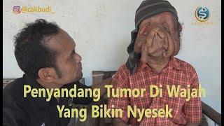Aksi Cak Budi di kota Bayu menemui sosok tegar penyandang tumor di wajah, bikin hati menangis.