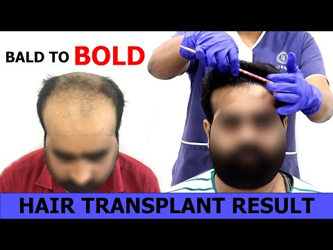 Baldness Grade (NW-6) | 4500+ Grafts Hair Transplant Result | HairFree HairGrow Clinic India