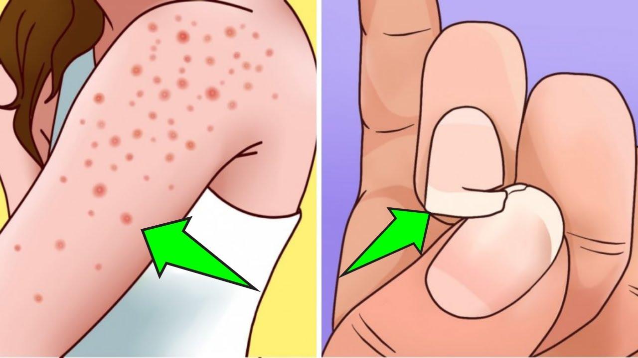 Sintomas de intolerancia al gluten en la piel