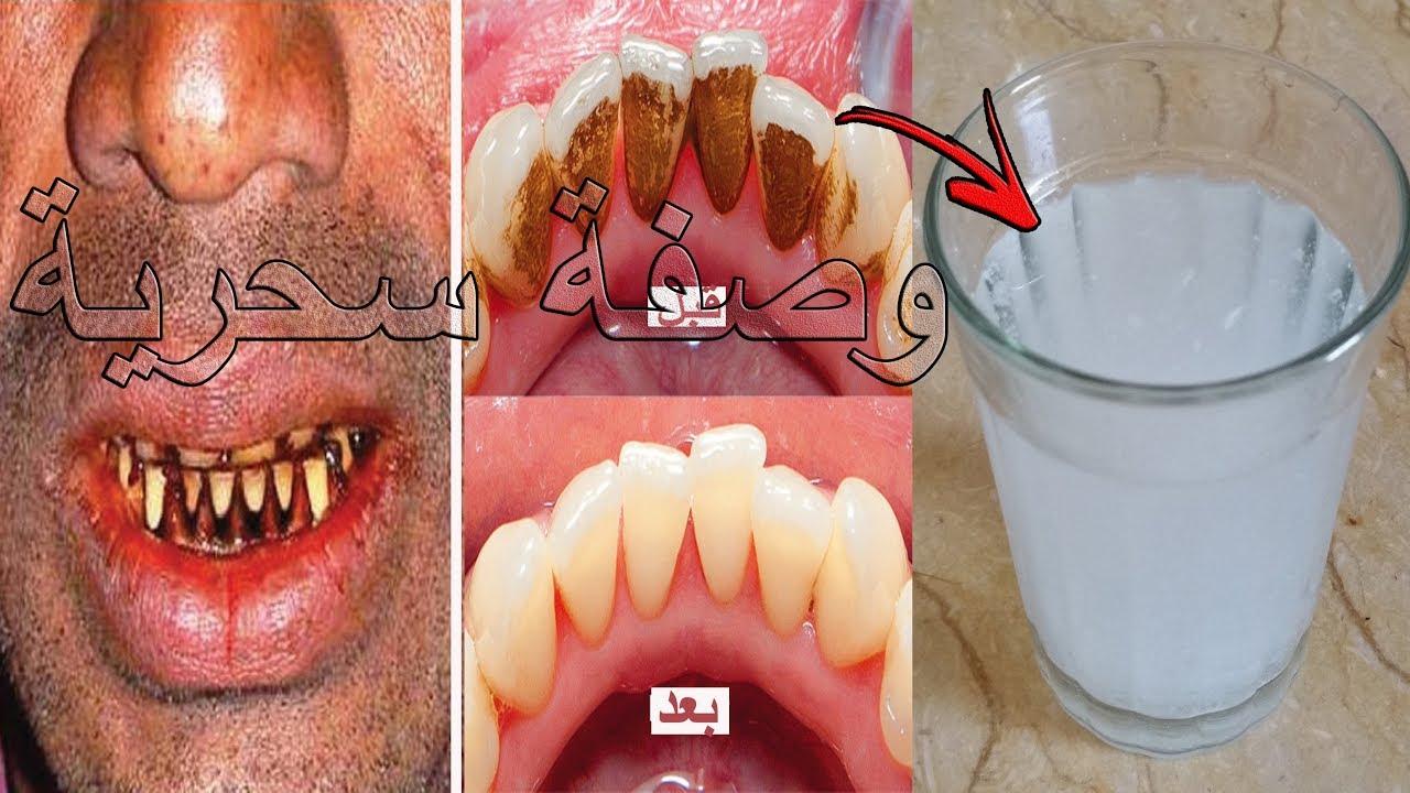 تبييض الأسنان في دقيقة واحدة مضمض به فمك وسوف ت بهرك النتيجة سيسقط الجير والإصفرار سيزول للأبد Youtube