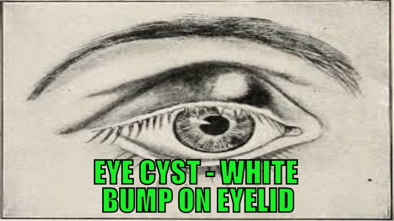 Eye Cyst   White Bump on Eyelid