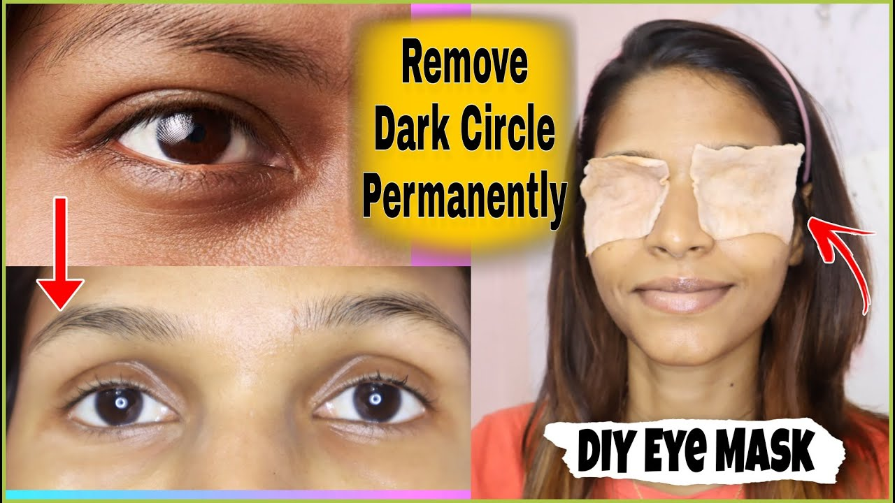How to get rid of dark circles permanently with in 10 days | how to remove dark circle