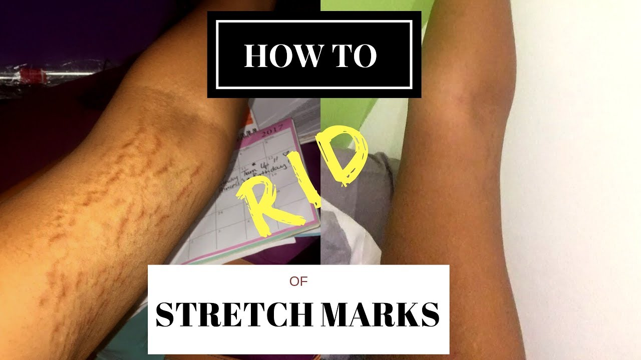 HOW TO GET RID OF STRETCH MARKS & SCARS FAST! | #RealWednesdays