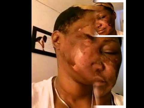 Can help Facial peel reviews