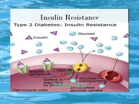 Medical Terminology: The Pancreas and Type 2 Diabetes