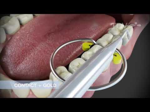 TDV CONTACT + GOLD - Reconstrucción de Puntos de Contacto