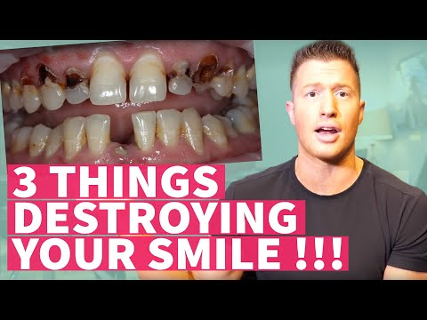 The 3 things that will destroy your smile!