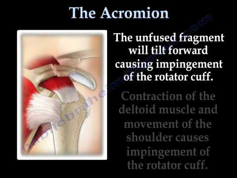 The Acromion Os Acromiale - Everything You Need To Know - Dr. Nabil Ebraheim