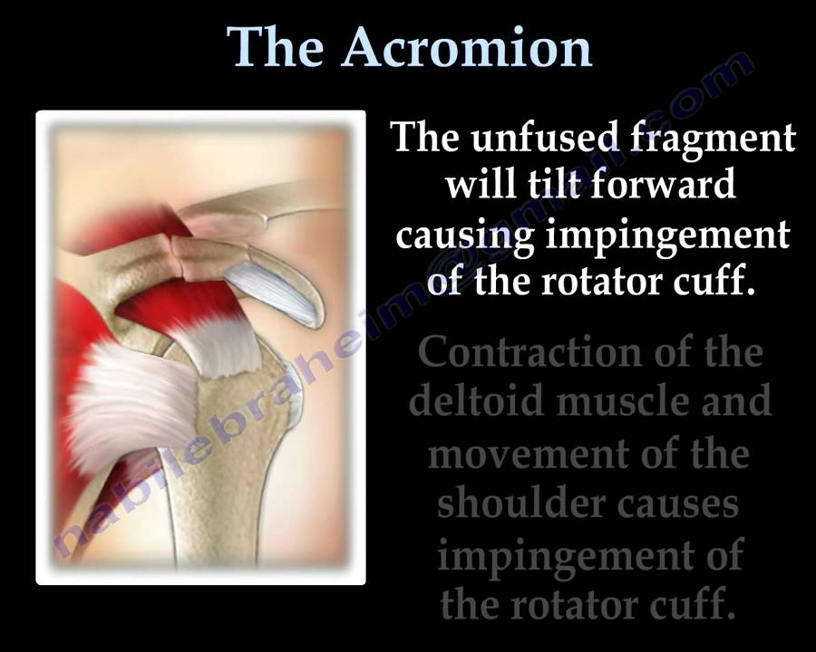 the acromion os acromiale everything you need to know dr nabil