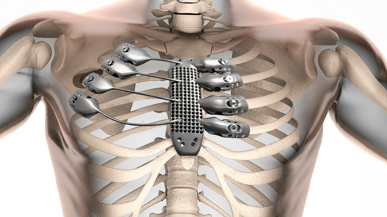 Cancer patient receives 3D-printed sternum and ribs - YouTube