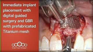 Immediate implant placement with digital guided surgery and GBR with prefabricated Titanium