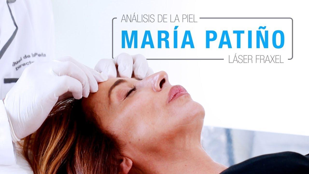 María Patiño Tratamiento Con Láser Fraxel Clínicas Diego De León