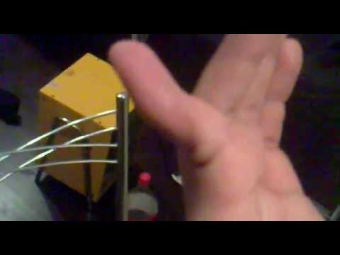 Вывих пальца