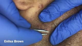Managing Ethnic Skin (extractions 8) thumbnail