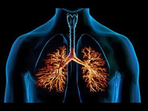 cara-pengobatan-paru-paru-basah-berhasil-sembuh---obat-paru-paru-basah