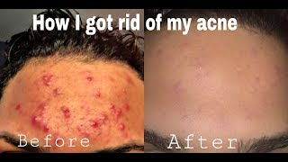 HOW I CLEARED MY SKIN UP| Major Difference  | CeejayGlam