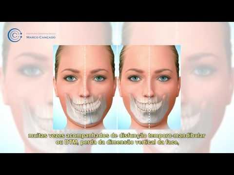 casos-complexos-em-odontologia