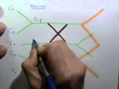 El ABC del PLEXO BRAQUIAL o REGLA DEL WXYZ - YouTube