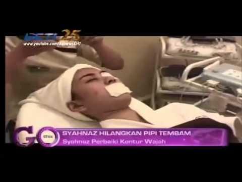 Syahnaz Shadiqah (Adik Raffi Ahmad) Lakukan Cara Khusus Hilangkan Pipi & Paha ...