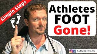 Athlete's Foot (Tinea Pedis) - How do you treat this?.