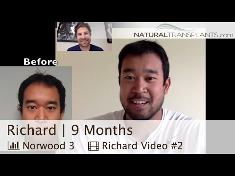 Hair Transplant Results | Hair Growth West Palm Beach (Richard)
