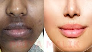 How To Remove Dark Black patches, Dark Spots,Hyper pigmentation, Around Your Mouth | PRIYA MALIK