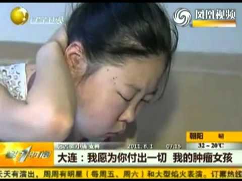 Video Cô gái và cổ cóc nặng 1kg   Phi thuong   ky quac 24h video video