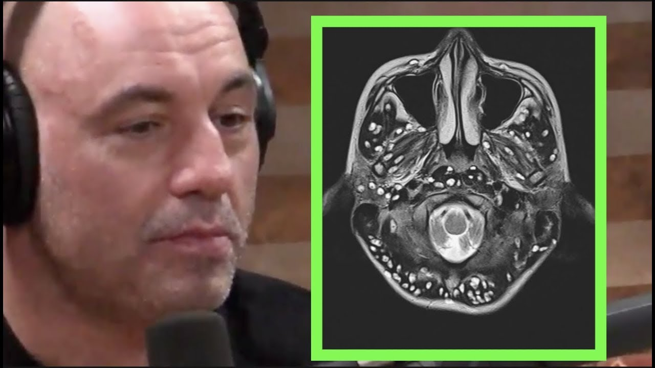 Joe Rogan - Indian Teen Died from Brain Parasites
