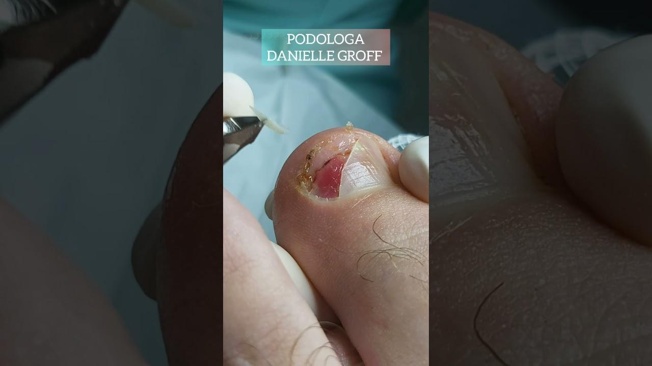O perigo do uso de um calçado inadequado!😰Sigam também o Instagram e Facebook ➡️@podologadanielle